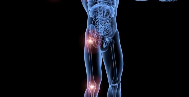 joint pain remedies